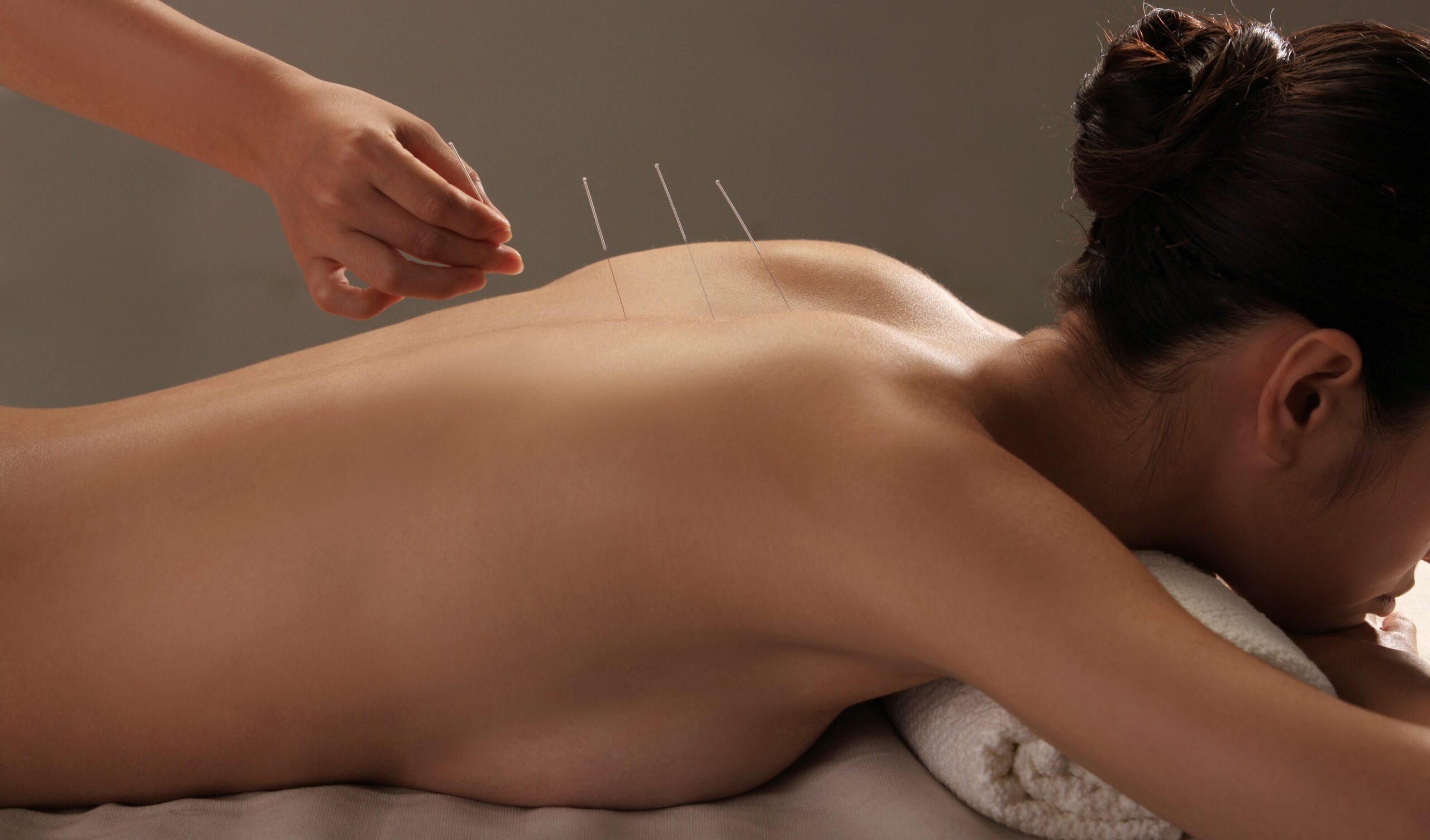 Иглотерапия по традиционной китайской медицине.